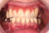 ■金属歯フェチ■銀歯・金歯・差し歯に萌えYouTube動画>55本 ->画像>439枚